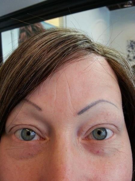 Silmien pigmentointi, molemmat ennen.