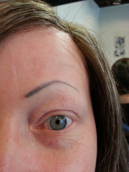 Silmien pigmentointi, vasen ennen.