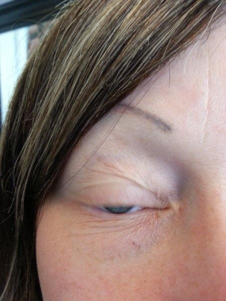 Silmien pigmentointi, oikea ennen.